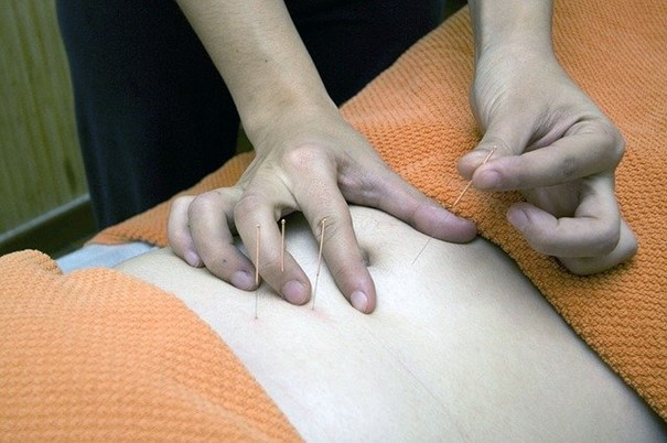 Traditionnal Chinese acupuncture session